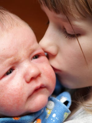 Cmpa Symptom Eczema In Babies Nhs
